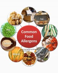 Most Common Food Intolerance / Sensitives